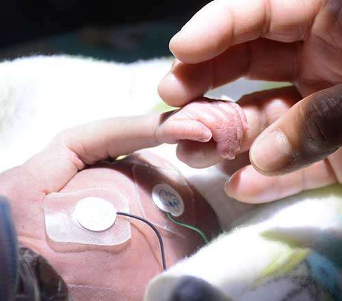 in-home premature baby care service
